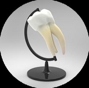 Ząb leczony kanałowo.